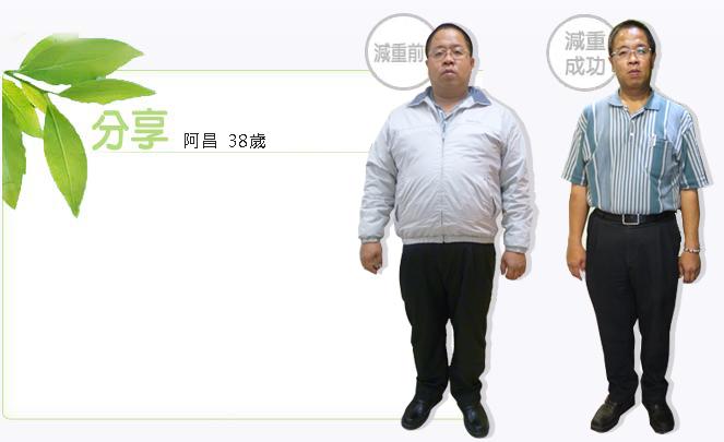 減重手術案例