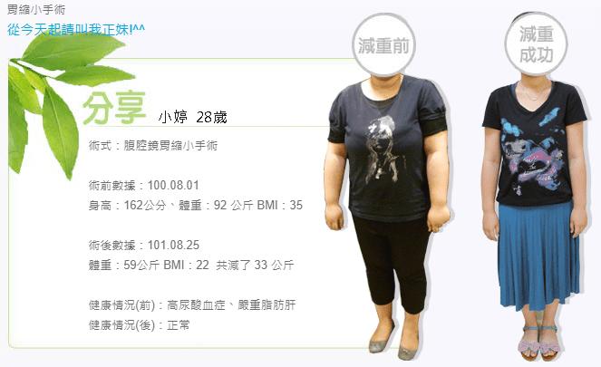 胃縮小減重手術成功案例,不用擔心復胖的問題~