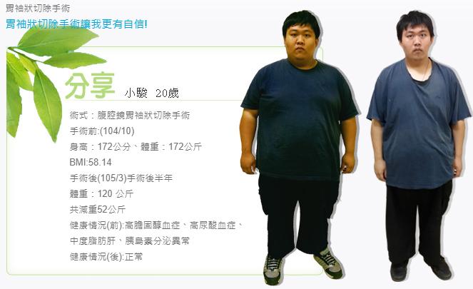 腹腔鏡胃袖狀切除手術,三高遠離我,減重手術案例