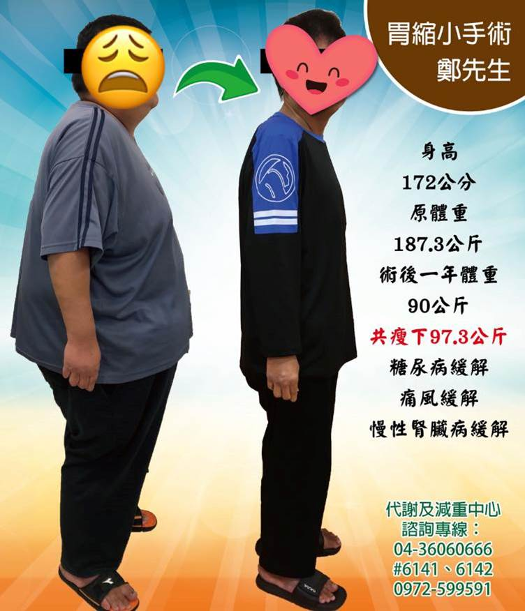 鄭先生的減重分享怒甩97.3Kg!!