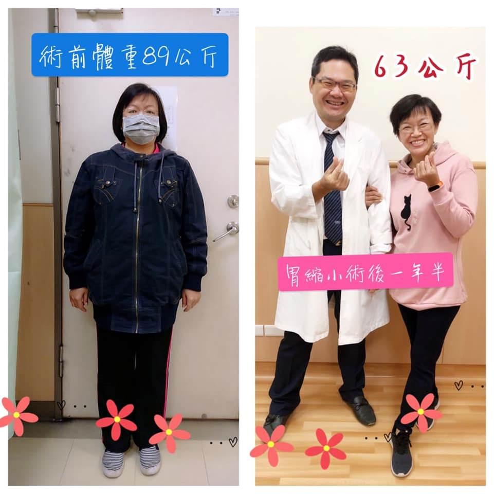 胃縮小手術案例 | 身體更健康,整個人變得更有自信!