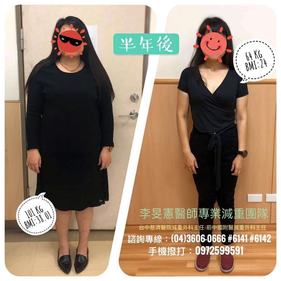 胃縮小手術案例,變身窈窕美女