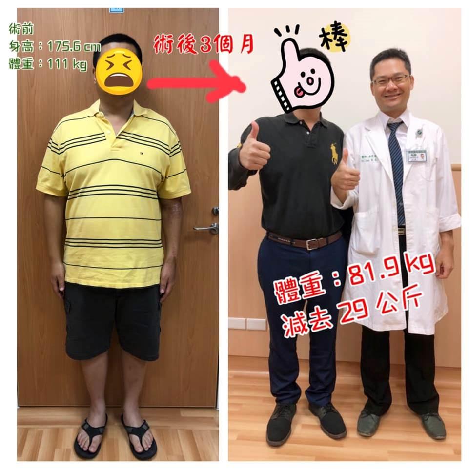 胃縮小手術減重成功案例,整個人更有型了!